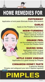 324 - Home remedies for PIMPLES